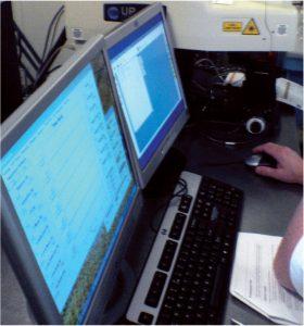 GBC Logiciel double écran pour ablation Laser