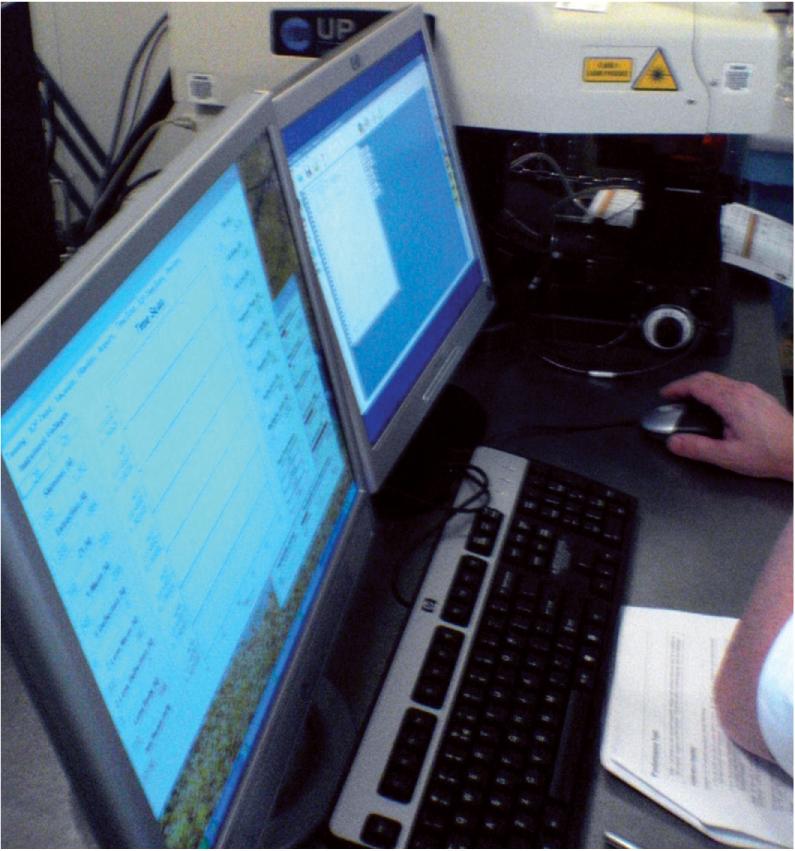 Système d'ablation laser